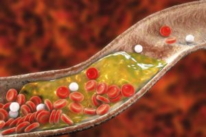 3D represntation of cholesterol in blood stream